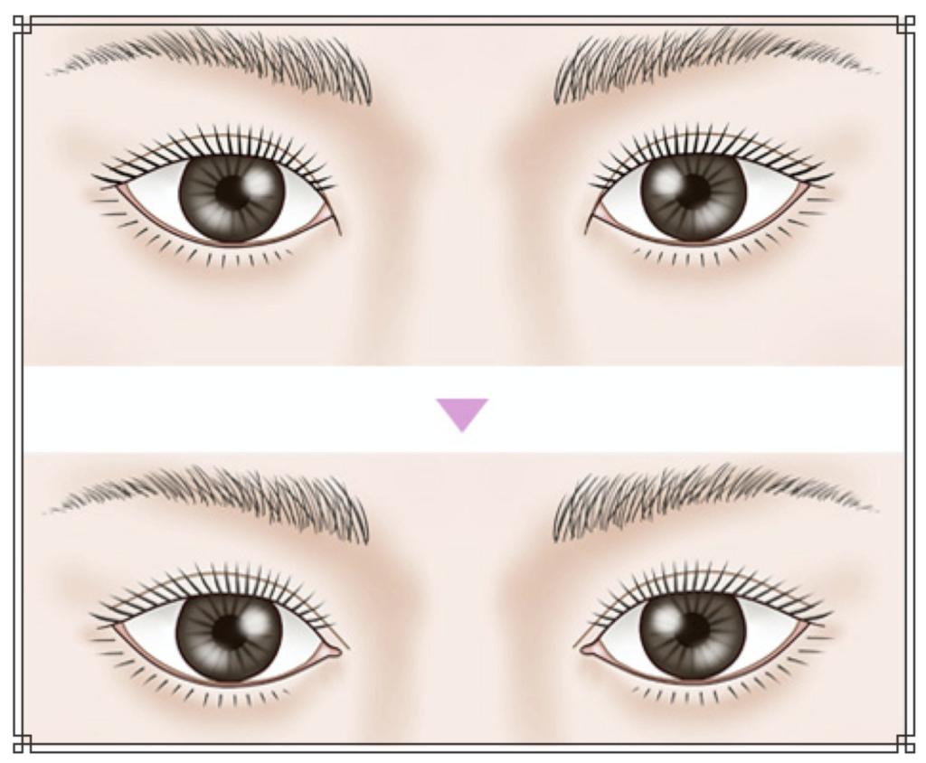 目頭切開のイメージ図