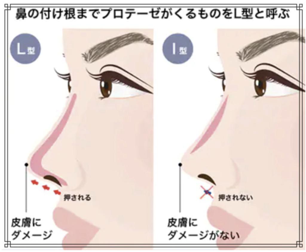 鼻プロテーゼの説明画像