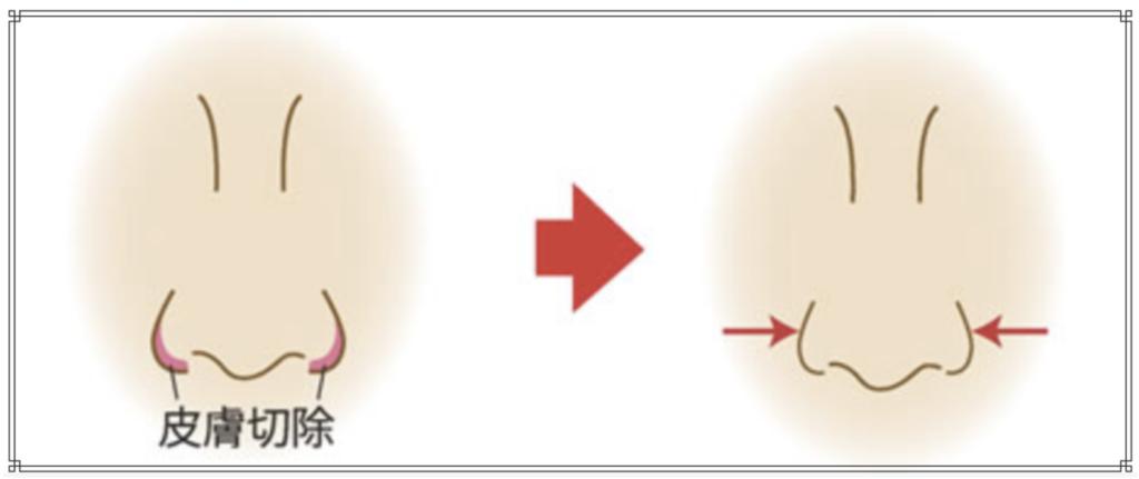 小鼻縮小のイメージ図