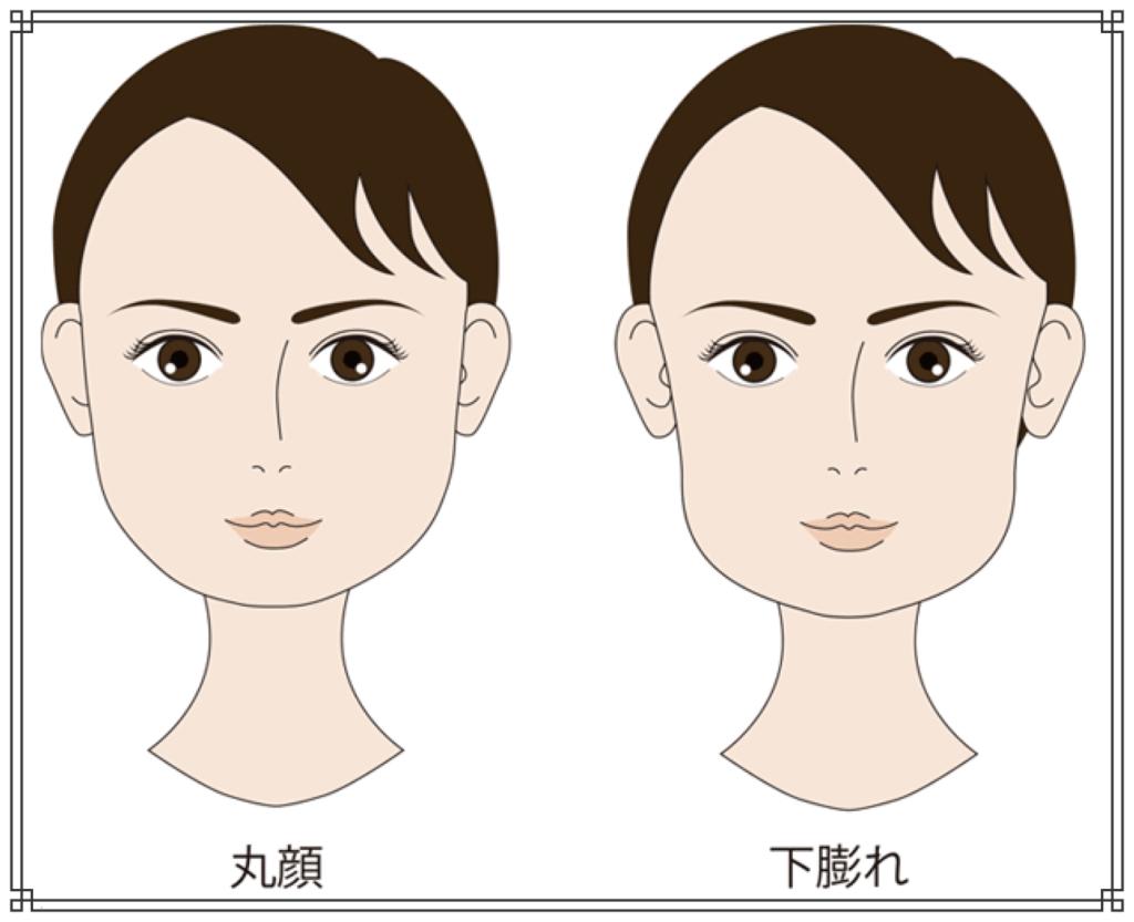 下膨れ顔のイメージ図