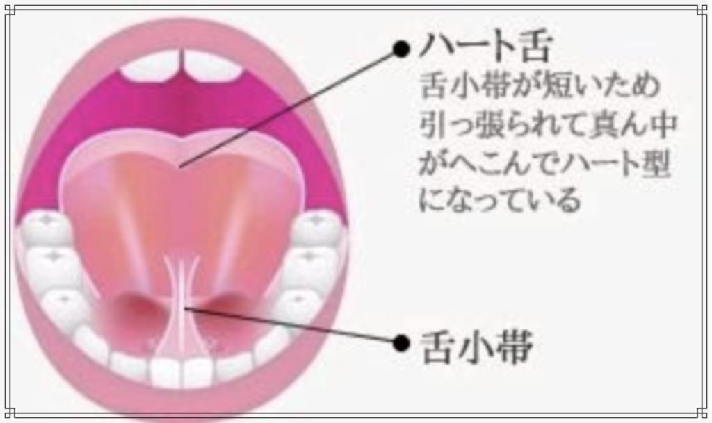 低位舌(ていいぜつ)のイメージ図