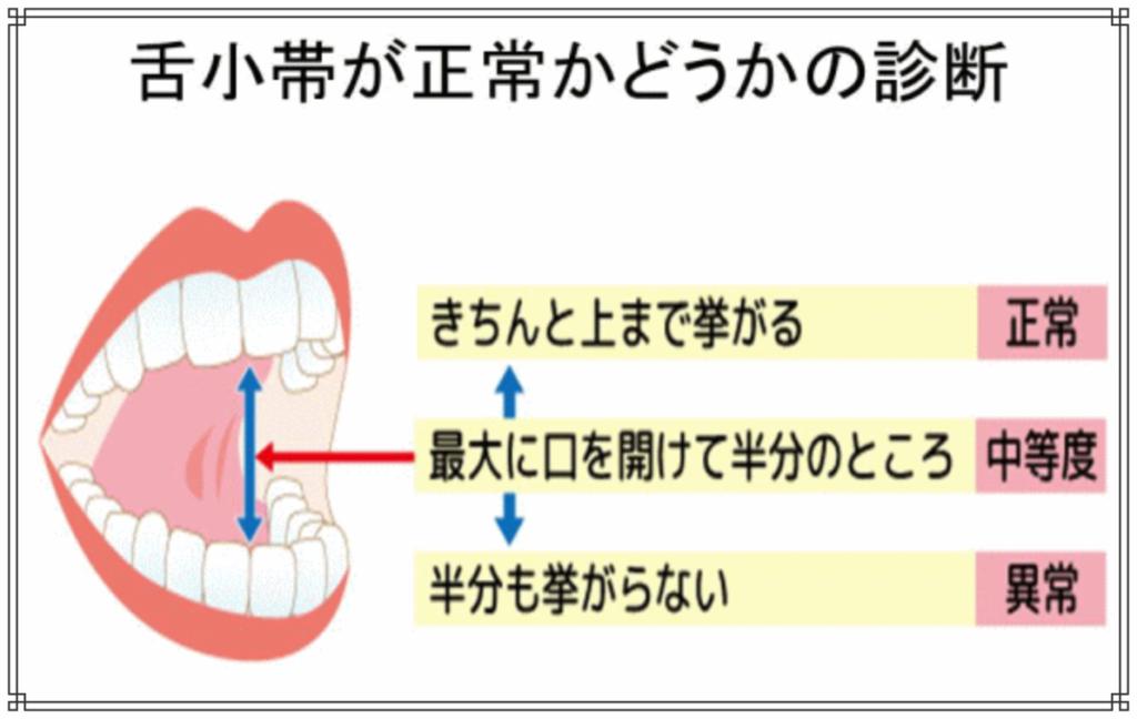 舌小帯(ぜんしょうたい)短縮症のイメージ図