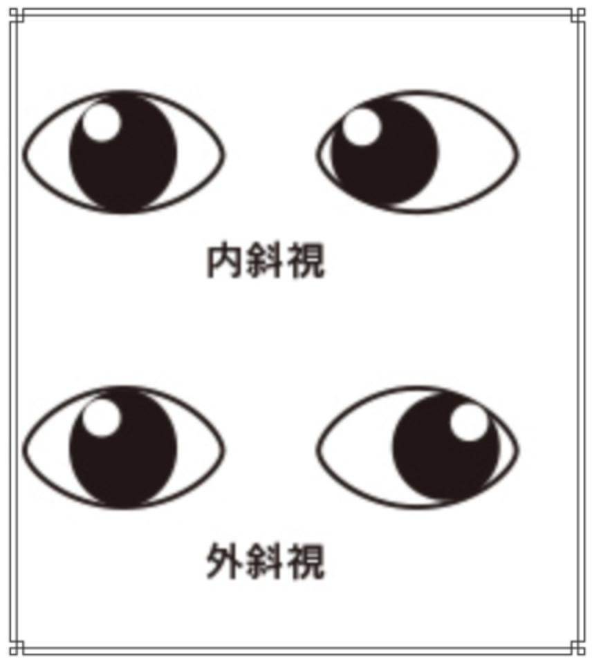 内斜視のイメージ画像