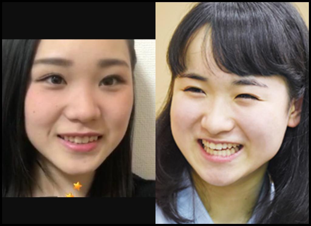 伊藤美誠選手と潮干狩鯏さんの画像