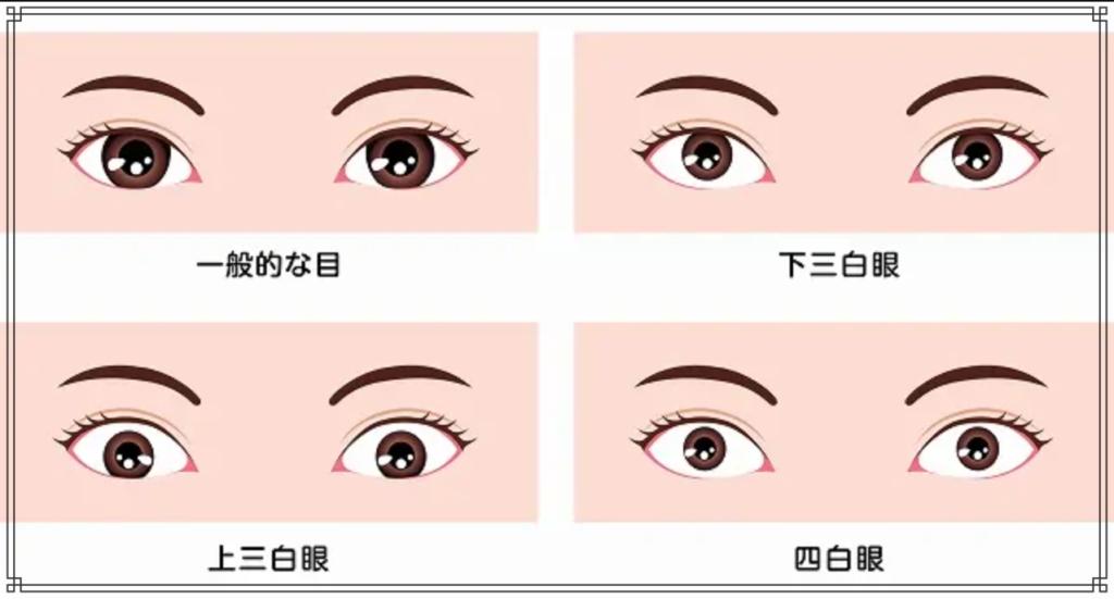 三白眼のイメージ図