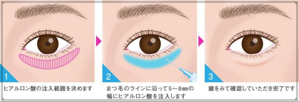 ヒアルロン酸(涙袋)イメージ図